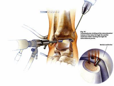 Ankle Arthroscopy Peter Rosenfeld Frcs London