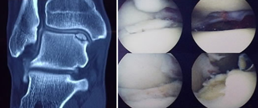 Osteochondral Defects