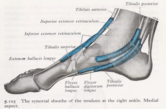 Flat Foot Correction (Posterior Tibial Tendon Dysfunction