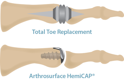Toe replacement systems
